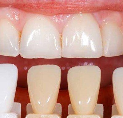 studio dentistico cusmai foggia - Faccette e Sbiancamento